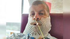 Hombre dejó de ir al dentista 27 años, descubren tumor del tamaño de un puño y le quitan la mandíbula
