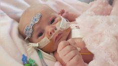 Niña nacida con raro defecto cardíaco sobrevive a dos cirugías y se prepara para cumplir 3 años