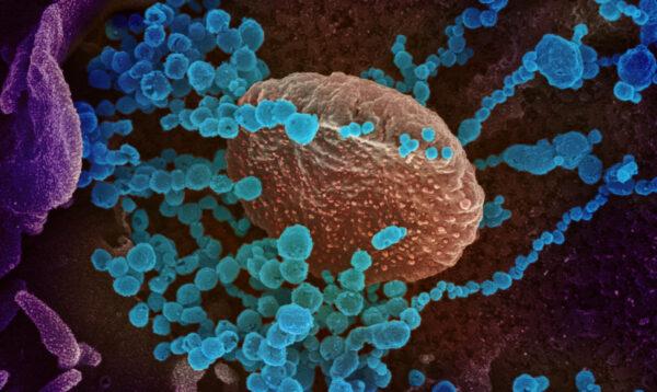 La imagen del microscopio electrónico de barrido muestra al virus PCCh (objetos redondos azules), el virus que causa el COVID-19, emergiendo de la superficie de las células cultivadas en el laboratorio. (NIAID-RML)