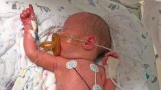 Bebé que nació con el intestino delgado fuera de su pequeño cuerpo se recupera de la grave cirugía