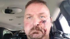 Jefe de policía de Carolina del Sur fue apuñalado con un picahielo, dicen autoridades