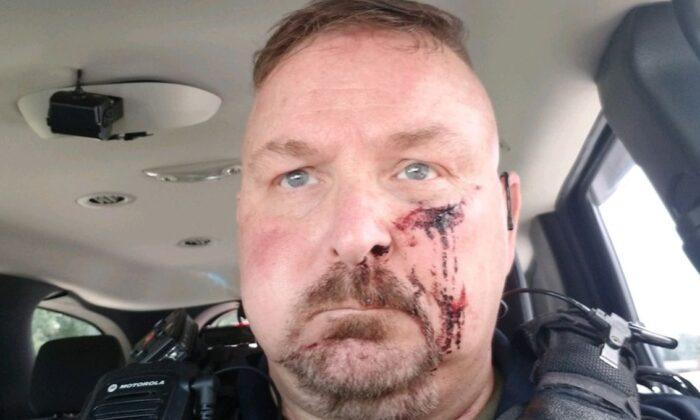 """Un jefe de policía de Carolina del Sur fue apuñalado en la cara por un hombre que le dijo que """"iba a morir hoy"""" cuando abrió la puerta, dijeron las autoridades. (Policía de Bonneau)"""