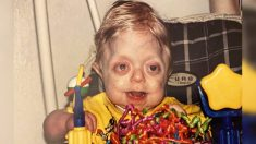 Enfermera que cuidó a un bebé con raro trastorno, se toma fotos con él, ahora que es un adolescente