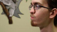 Innovadora cirugía de paladar hendido cambia la vida de un paciente de 20 años