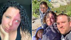 Madre intimidada por marca de nacimiento pensó que nunca encontraría el amor, tiene una linda familia
