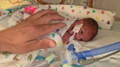 Bebé prematuro extremo que nació pesando 1 libra se va a casa después de 133 días en la UCIN
