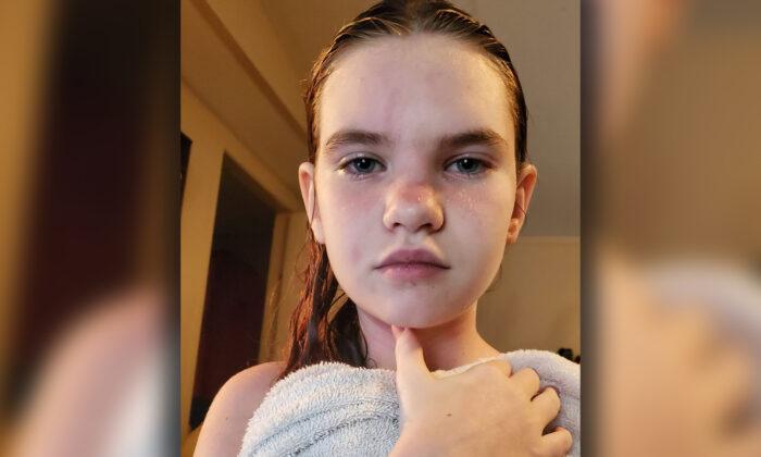 Extraña alergia al agua de una niña es tan severa que hasta ducharse podría ser fatal