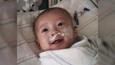 Bebé prematuro con insuficiencia cardíaca sobrevive a cirugía a corazón abierto a los 2 meses de edad