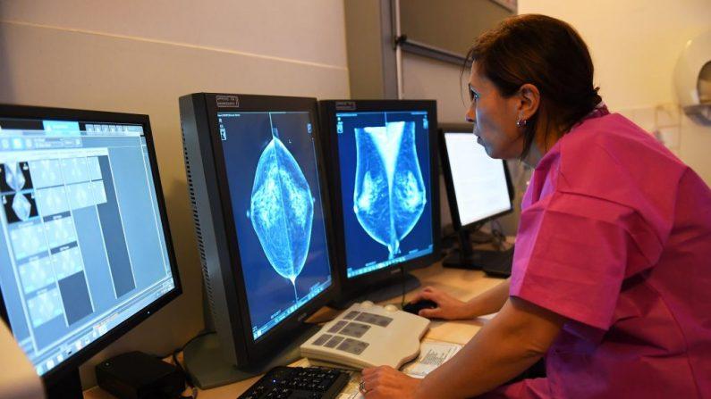 Una doctora examina los resultados de una mastografía, el 9 de octubre de 2017 en el instituto Paoli-Calmette, centro regional de lucha contra el cáncer. (ANNE-CHRISTINE POUJOULAT/AFP vía Getty Images)