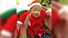 Bebé prematura cumple un año después de que los médicos dijeron durante un mes que no sobreviviría