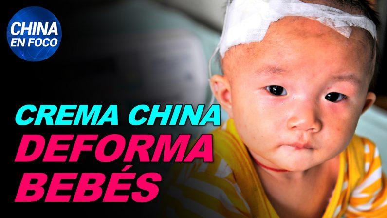 Producto chino causa deformidades en bebés. Aparecen secuelas en casi todos los pacientes del virus. (China en Foco/NTD en Español)