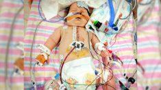Niño con raro defecto cardíaco, revivido 9 veces, aún sonríe gracias al amor de su familia