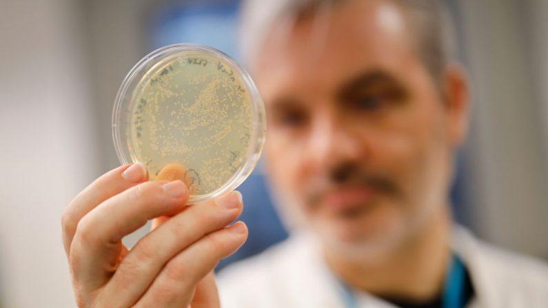 El doctor Paul McKay posa para una fotografía con bacterias que contienen el ADN del coronavirus, COVID-19, en la Escuela de Medicina del Imperial College (ICSM) en Londres el 10 de febrero de 2020, Reino Unido. (Tolga Akmen /AFP vía Getty Images)