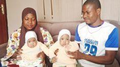 Hospital de Nigeria realiza separación exitosa de gemelas unidas y le da empleo a sus padres