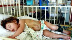 Niña que nació con su corazón latiendo fuera del pecho desafía los pronósticos y ahora tiene 11 años