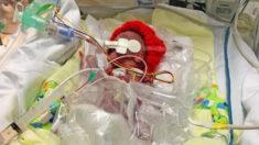 Bebé prematuro que nació pesando 1 libra supera dificultades para sobrevivir y ahora tiene 9 meses