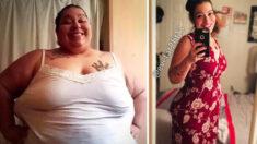 Mujer tenía que perder 300 libras o sufriría dolor por el resto de su vida: ¡Lo logró en 30 meses!