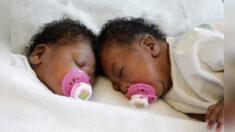 Gemelas unidas en la cabeza son separadas con éxito, ocurre en 1 de cada 2.5 millones de nacimientos