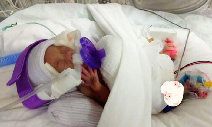 """El bebé """"más ligero del mundo"""", sale del hospital después de 13 meses : ¡Pesaba igual que una manzana!"""