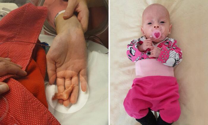 Bebé de poco más de 1 kg sobrevive milagrosamente, sus pies medían la mitad de un dedo de su madre