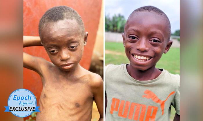 """Niño gravemente golpeado y abandonado, ahora es el """"niño más feliz"""" tras su rescate y rehabilitación"""